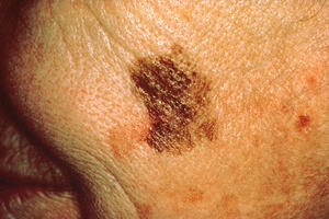 Large diameter of melanoma