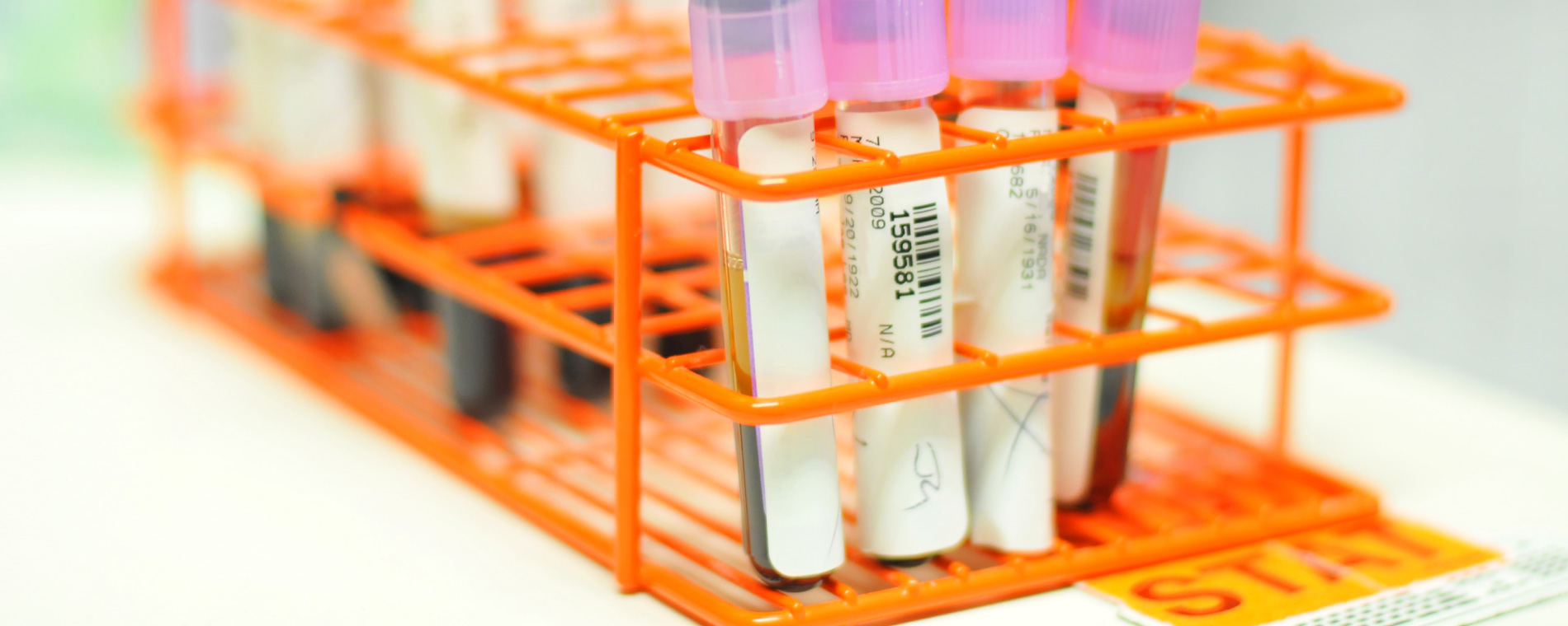 Lab work for cancer patients in Oregon's Willamette Valley