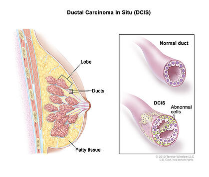 Ductal carcinoma in situ (DCIS) Breast Cancer