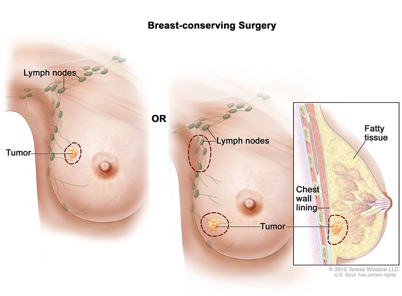 breast-conserving-surgery-female
