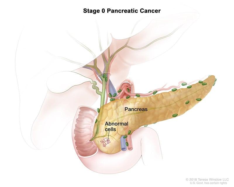 pancreatic-ca-stage-0
