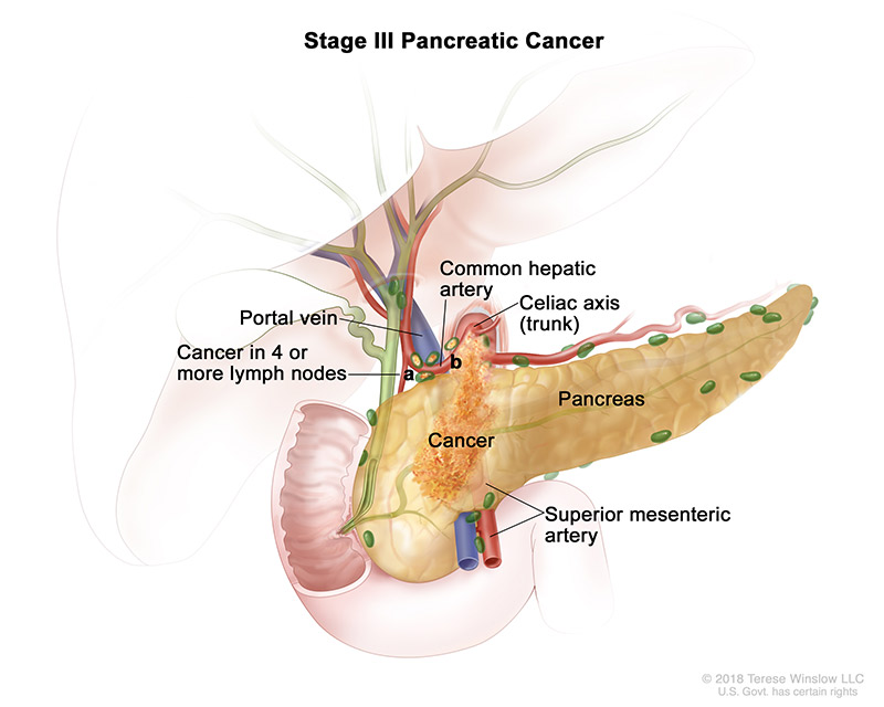 pancreatic-ca-stage-3